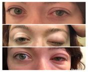 Eye shingles. First photo is 8 Pm Thursday, second photo is 12 am Friday at urgent care, and bottom photo is in the ER Saturday morning. from www subhashree xx photo